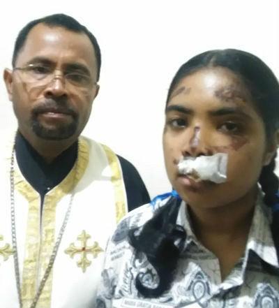 Fr Aleksander's daughter needs treatment now. Please help.